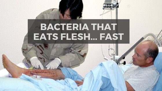 Necrotizing-Fasciitis-flesh-eating-bacteria-early-detection.jpg